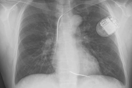 Implanted defibrillator