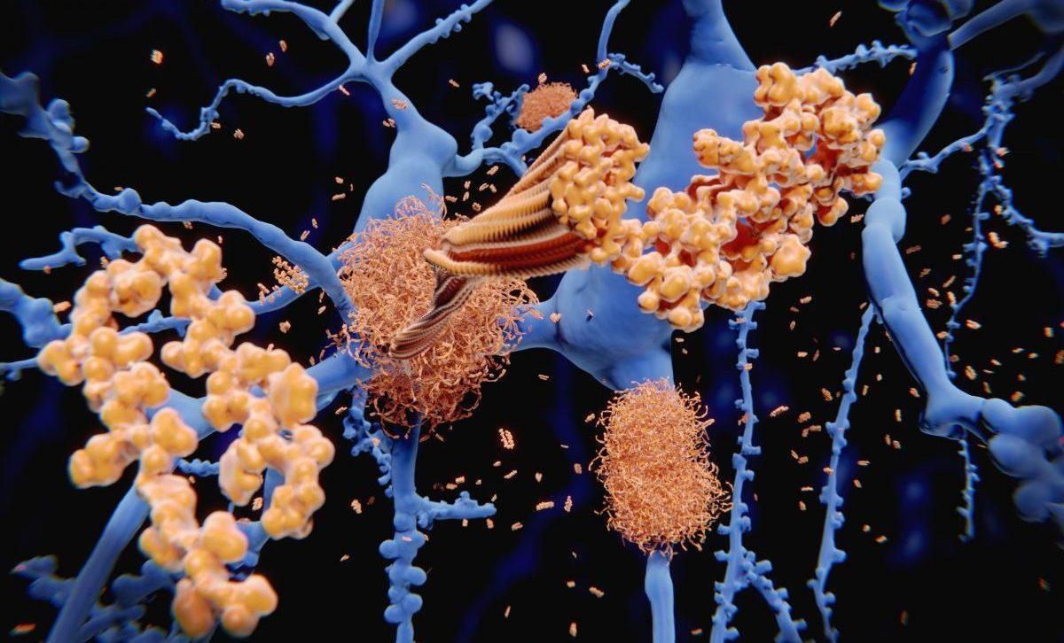 beta amyloid